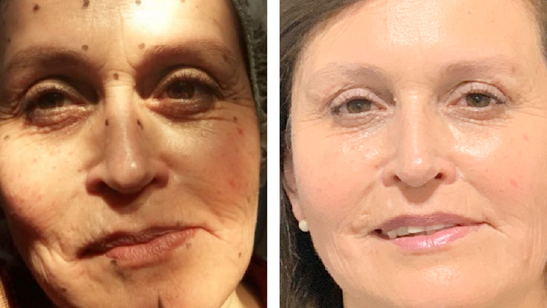 Armonización y rejuvenecimiento facial