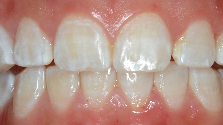 La Microabrasión en Odontología Estética