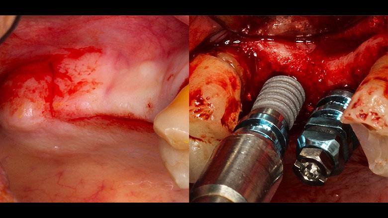 Cirugía implantológica avanzada