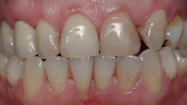 Rehabilitación bucal estética con asistencia de ortodoncia