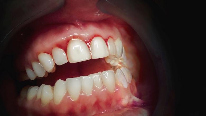 El cemento quirúrgico: ¿se debe utilizar o no?