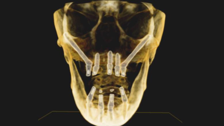 Implantes zigomáticos en la práctica común de la odontología