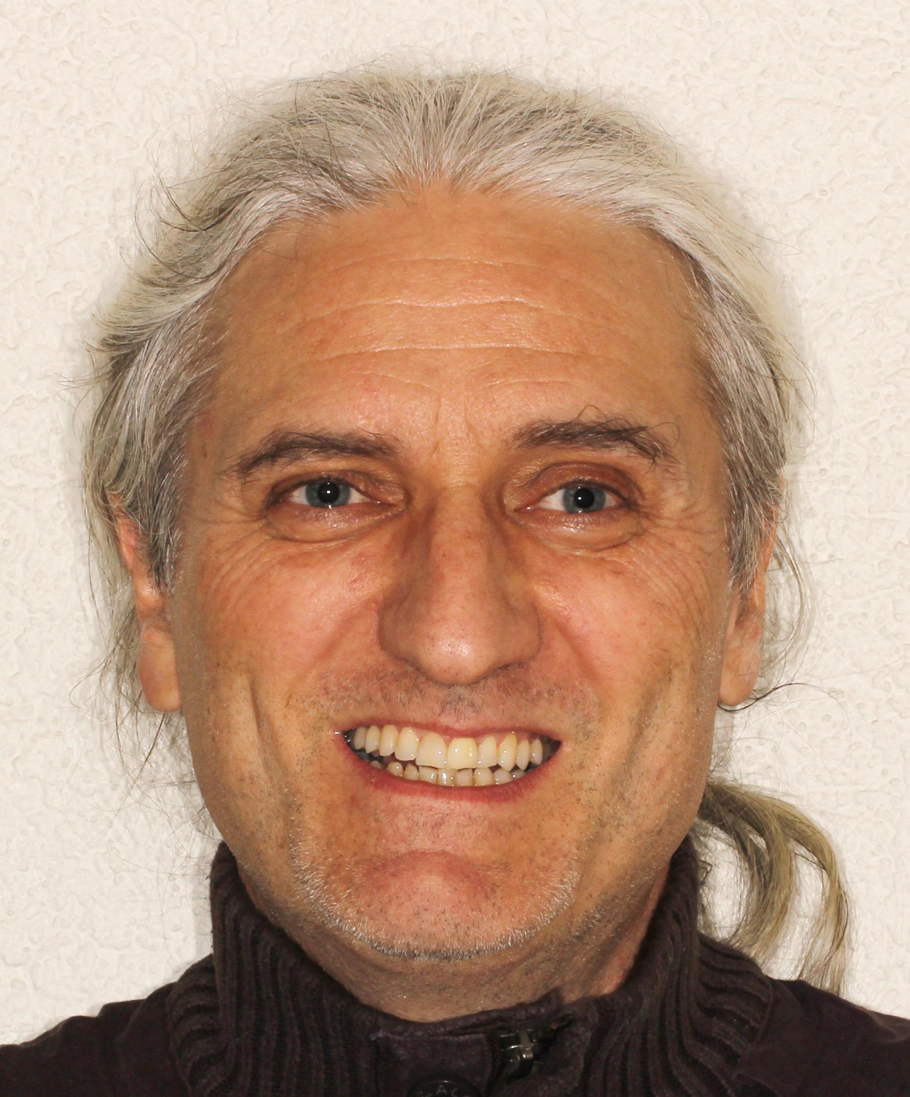 Renato Carretti