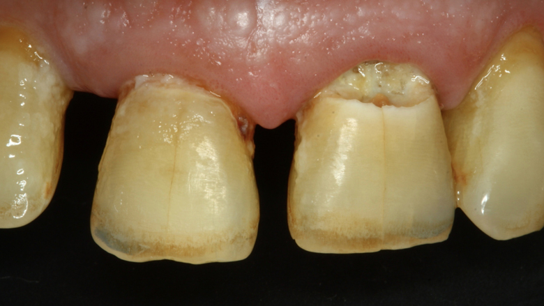 Cambio de paradigma en la remoción de caries