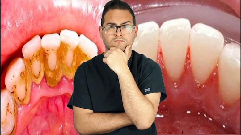 El dentista más popular (3)