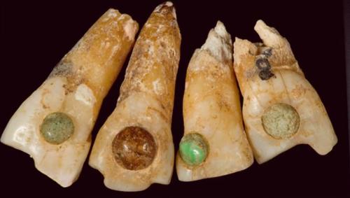Odontología Precolombina (Museo de la Odontologia, Ep.2)