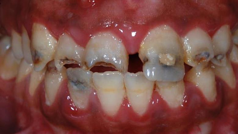 Estética dental y comunicación con el paciente