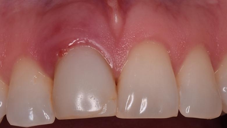 La regeneración alveolar en dientes anteriores