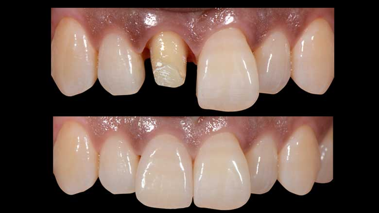 Rehabilitación estética de un diente anterior