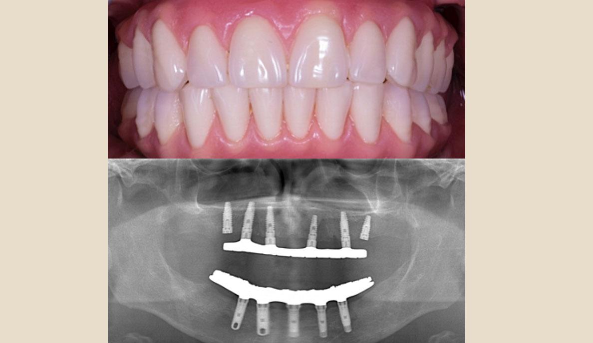 Prótesis Híbrida Inmediata en pacientes edéntulos mandibulares