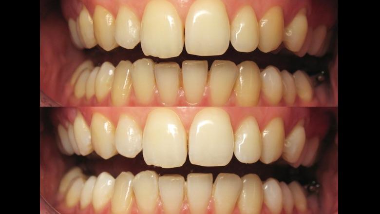Ortodoncia + Blanqueamiento, la guinda del pastel
