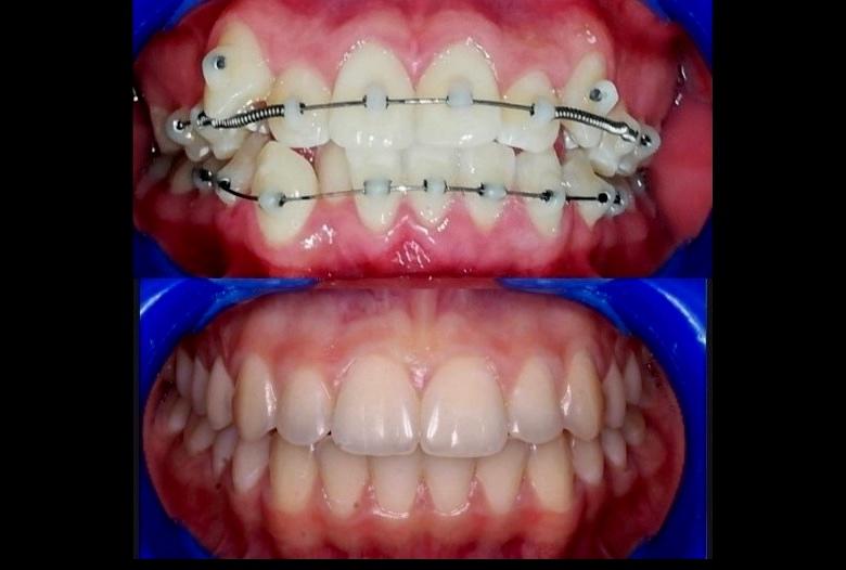 Ortodoncia fija sin brackets con la técnica SLIDE OD