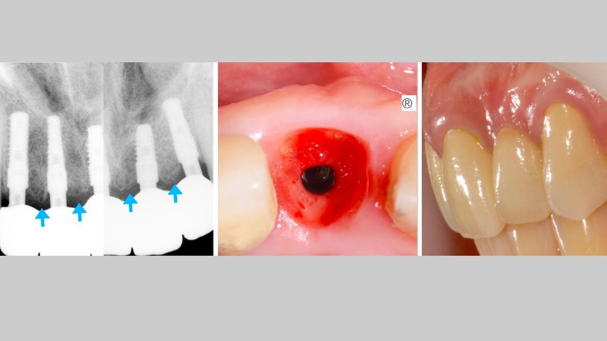 Resultados a largo plazo de una implantología simple