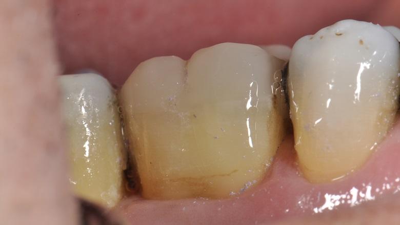 Refuerzo directo complejo de dentina pericervical sometida a tratamiento endodóntico